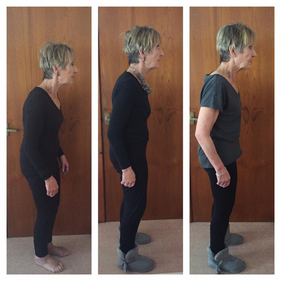 En3 Perform Parkinson's posture improvements
