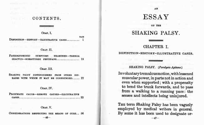 the shaking palsy An essay on the shaking palsy james parkinson, member of the royal college of surgeons preface the advantages which have been derived from the caution with which hypothetical statements.
