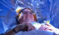 Brain-Surgery-Live-1
