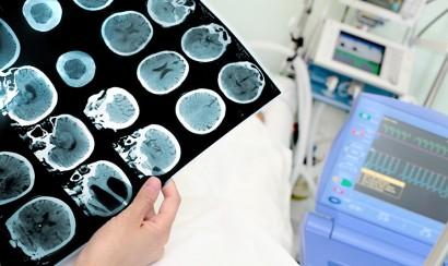 Brain-Surgery-Live