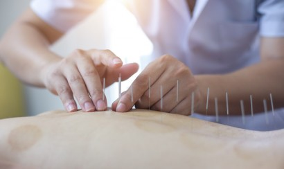 Person receiving acupuncture treatment