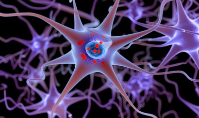alpha-synuclein Parkinson's MJFF competition