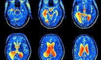 Parkinson's in the news: December