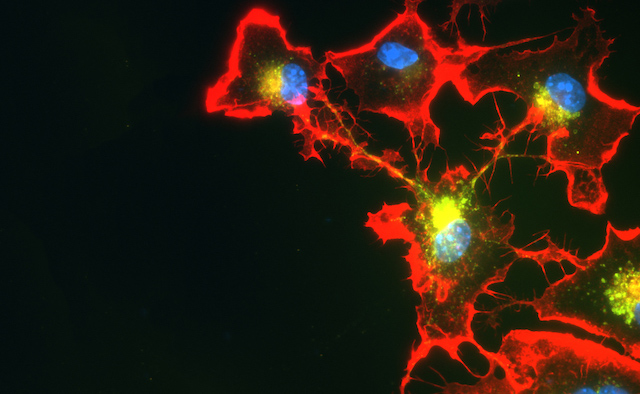 An abstract red, blue and yellow cell cluster.